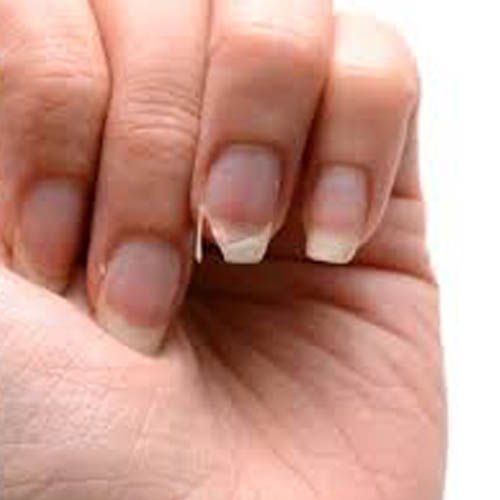 reparation ongle allauch